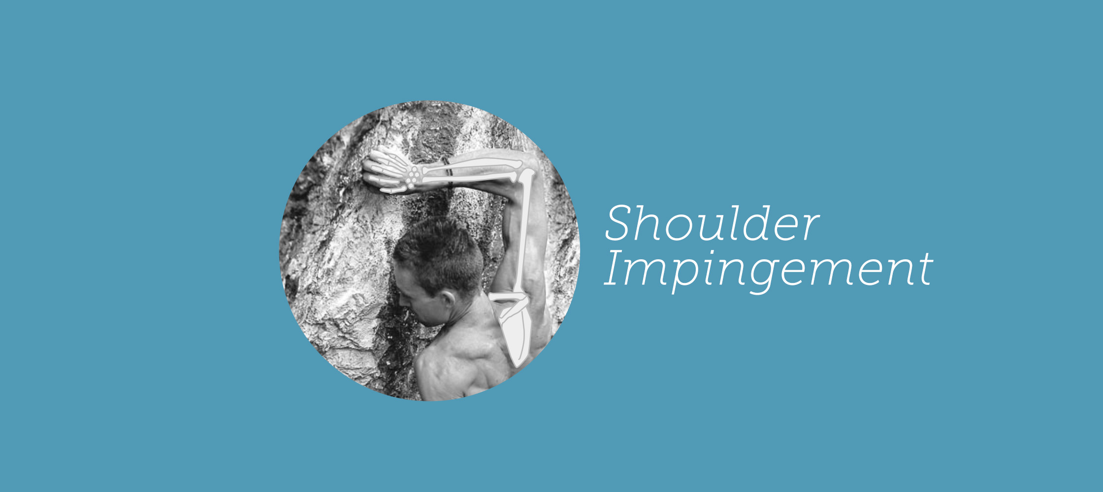 shoulderImpingement
