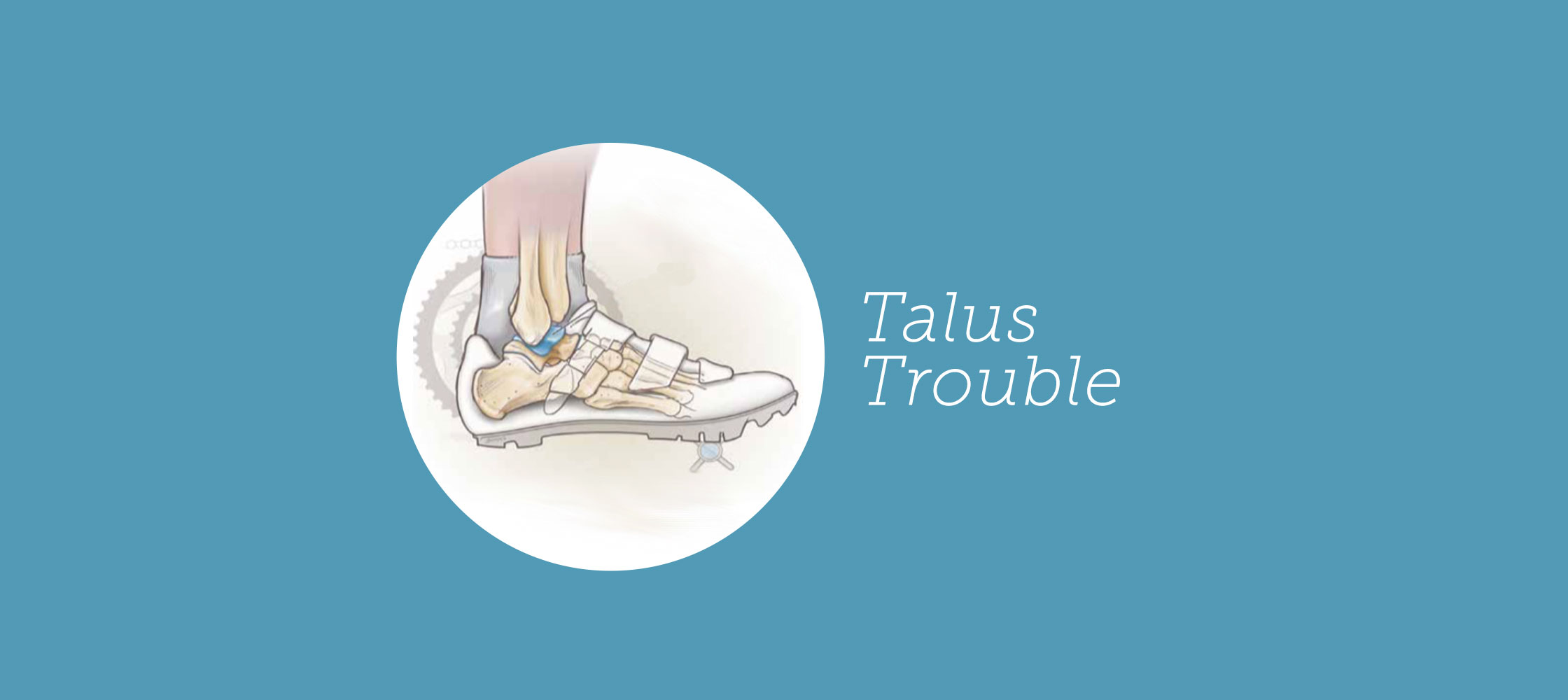 204-talus-trouble