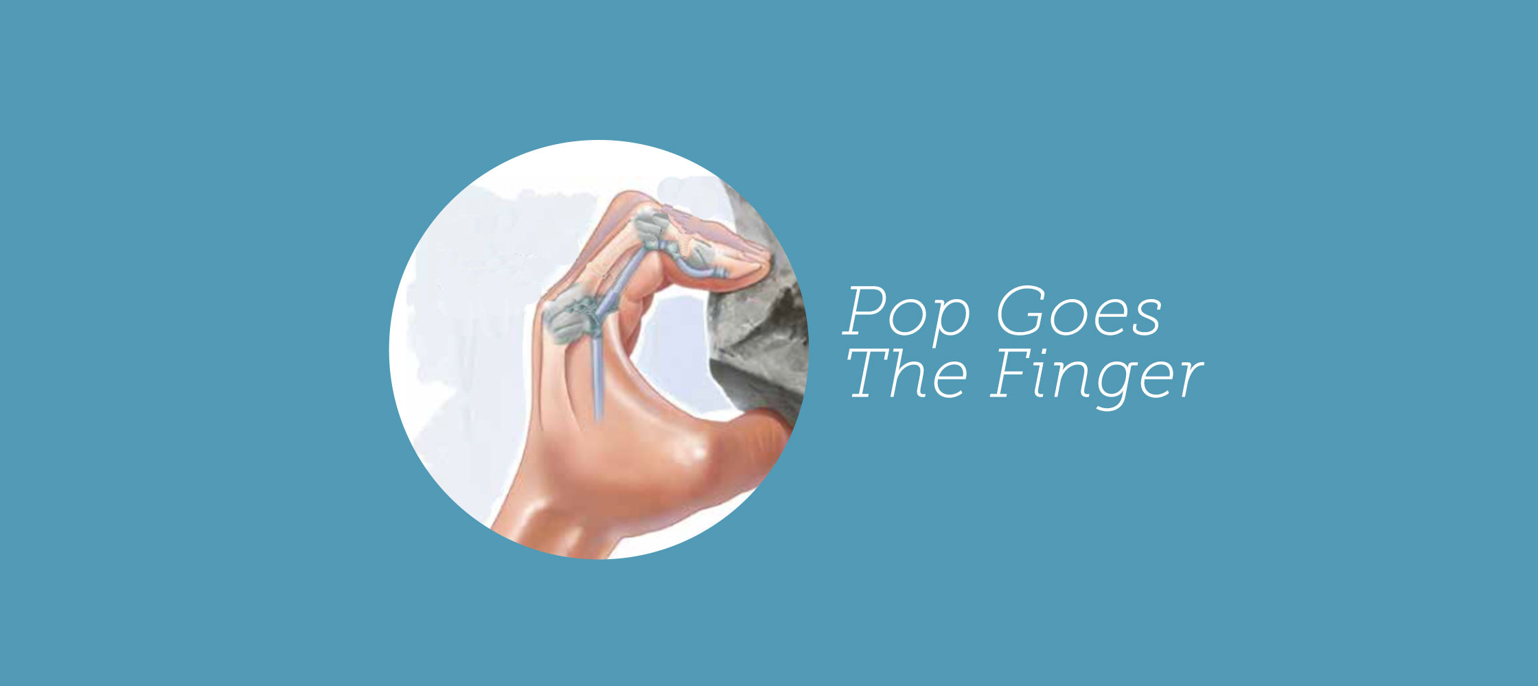 215-pop-goes-the-finger(within-guides)