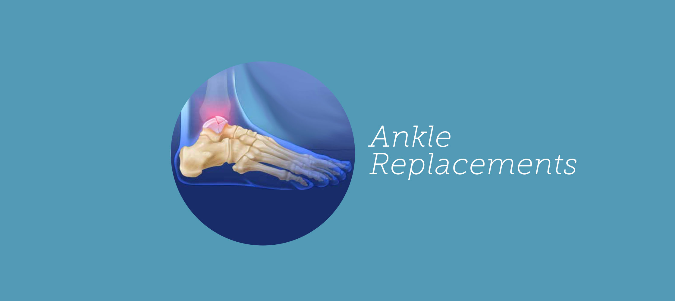 216-ankle-replacements(outside-guides)