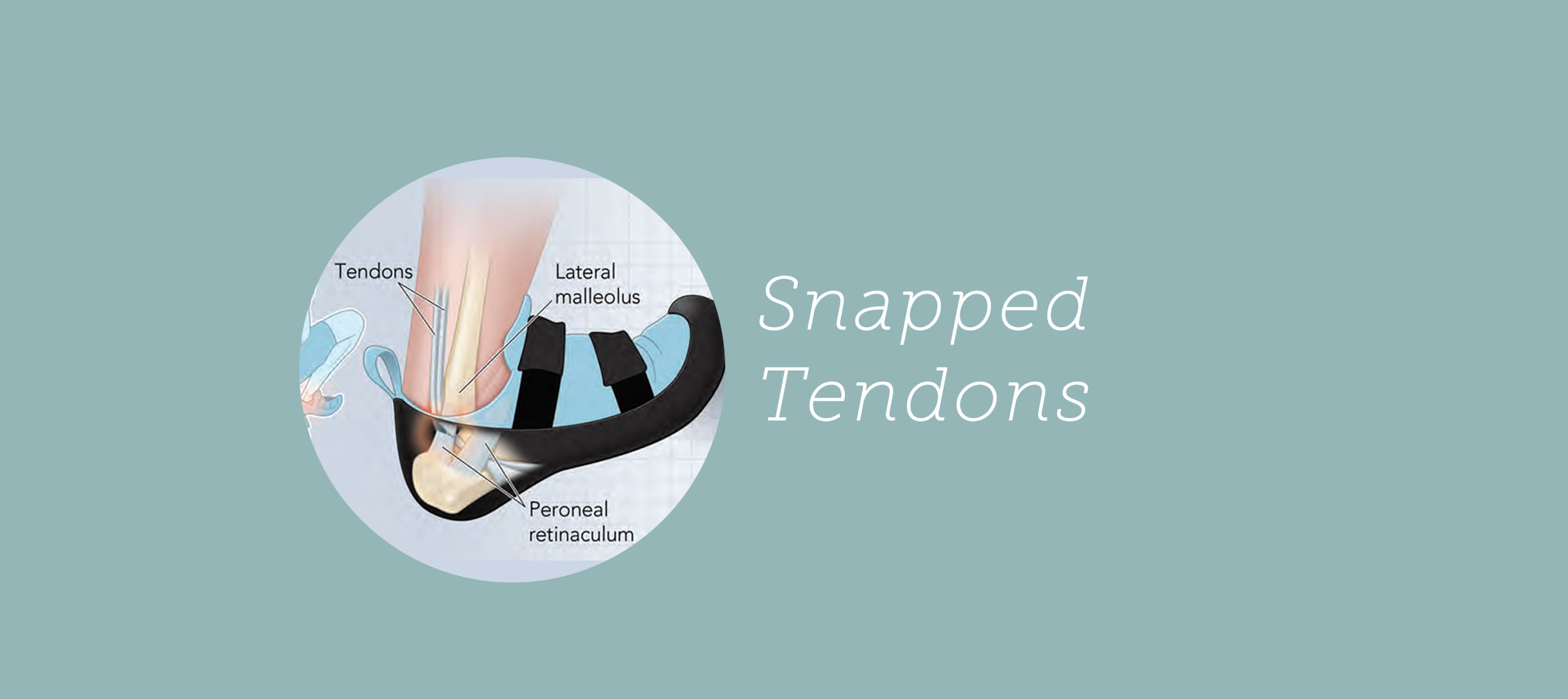 SnappedTendons